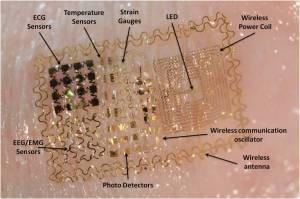 EpidermalElectronicS1